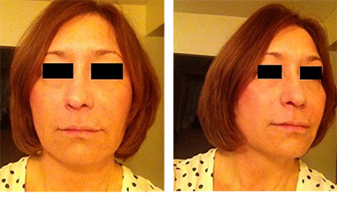 MID-FACE with VOLUMA® - after