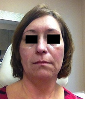 MID-FACE with VOLUMA® - before