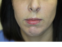 JUVEDERM® - before